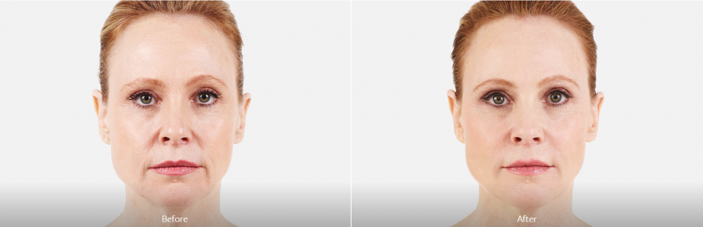 Juvederm wrinkle fillers from The Center for Facial Cosmetics